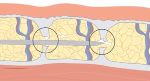Supprimer les capitons de la cellulite fibreuse, la révolution Cellfina